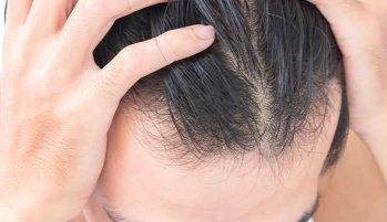 come fermare la caduta dei capelli a causa di farmaci
