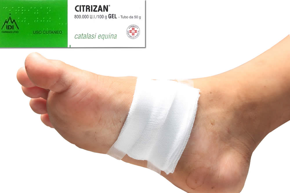 Citrizan Gel