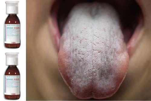 disfunzione erettile di lurasidone