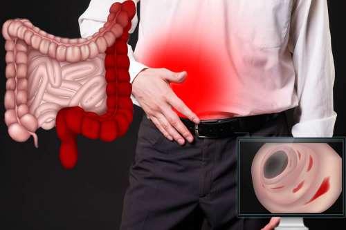 dieta per malati di colite ulcerosa