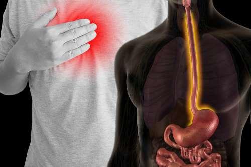dieta alimentare per esofago di barrett