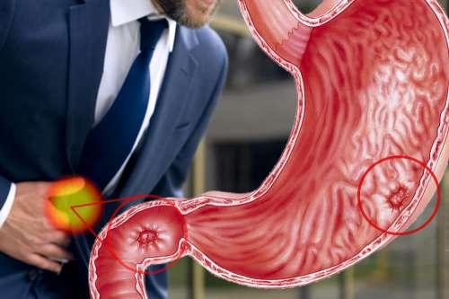 Ulcera Gastrica 2020 | Cause e Sintomi | Dieta, Cure, Rimedi Efficaci